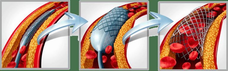 Implantacion stent
