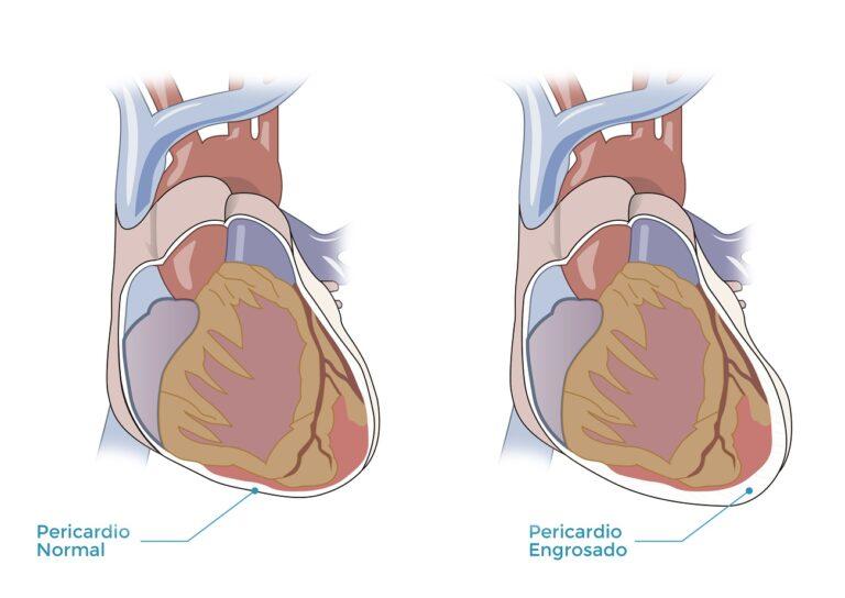pericarditis-cirugia-corazon