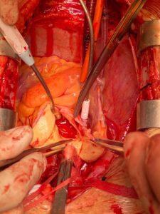Aneurisma de aorta, intervención